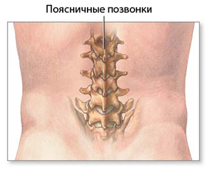 Lumbar puncture (LP) produced in between the spinous processes of L3-L4 and L4-L5 vertebrae.