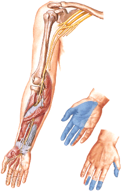 Damage of the median nerve (median nerve neuropathy or neuritis) causes a impairment of sensitivity in the I, II and III fingers.