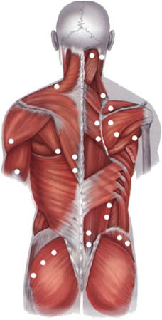 Localization of the typical painful trigger points in fibromyalgia (muscle pain).