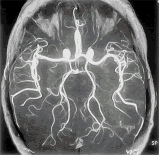 Magnetic resonance angiography (MRA) of cerebral vessels is performed for vascular diseases.