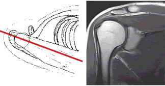 MRI of shoulder joint in the frontal projections may show no change in the cavity on the surface of the joint and its ligaments.