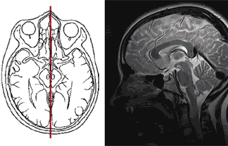 Magnetic resonance imaging of the brain in the sagittal plane is prescribed for some of its diseases. Showing sections of the third and fourth ventricles of the brain.