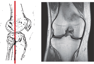 MRI of knee joint in the frontal projection (ligament, meniscus, articular cartilage) in the diagnosis of osteoarthrosis (gonarthrosis).