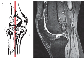 MRI of the knee in the sagittal projection (ligament, meniscus, articular cartilage) for injury or osteoarthrosis (gonarthrosis).
