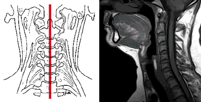 Magnetic resonance imaging of the cervical spine on a sagittal section for neck pain.