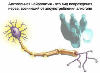 Toxic neuropathy, alcoholic neuropathy, alcoholic polyneuritis, diabetic neuropathy, treatment of toxic neuropathy, alcoholic neuropathy treatment, treatment of diabetic neuropathy, diabetic neuropathy, toxic neuropathy cure, treat alcoholic neuropathy, diabetic neuropathy treated in Moscow, symptoms