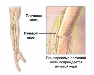 Traumatic neuritis, traumatic neuralgia, neuritis diagnosis and treatment in Moscow, post-traumatic neuritis, intoxication neuritis, neuralgia, intercostal neuralgia, herpetic neuritis, herpetic neuralgia, herpetic neuritis, postinjection neuritis, neuritis of the ulnar nerve, tibial nerve neuritis, neuritis of the peroneal nerve, symptoms