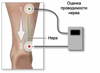 Neuritis of the ulnar nerve, ulnar nerve injury, acupuncture for ulnar nerve neuritis, treatment of neuritis of the ulnar nerve, the diagnosis of neuritis of the ulnar nerve, traumatic neuritis, traumatic neuralgia, neuritis diagnosis and treatment in Moscow, post-traumatic neuritis, intoxication neuritis, neuralgia, symptoms