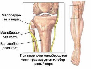 Peroneal nerve, peroneal nerve neuropathy (neuritis), peroneal nerve injury, acupuncture with neuritis of the peroneal nerve, the treatment of neuritis of the peroneal nerve, the diagnosis of neuritis of the peroneal nerve, traumatic neuritis, traumatic neuralgia, neuritis diagnosis and treatment in Moscow, post-traumatic neuritis, intoxication neuritis, neuralgia, symptoms