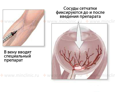 Structures of the eye and visual impairment during their lesions, cornea, pupil, Intraocular fluid and glaucoma, types of glaucoma, open-angle glaucoma, angle-closure glaucoma, congenital glaucoma, secondary glaucoma, lens of the eye and cataract, vitreous body, choroid , diagnosis and treatment in Moscow, symptoms