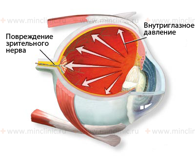Retina and optic disc, visual impairment during their lesions, retina, retinal degeneration, retinitis pigmentosa, degeneration of Bruch's membrane, extensive degeneration, degeneration of the outer retinal layers, degeneration of the inner retinal layers, optic disc , diagnosis and treatment in Moscow, symptoms