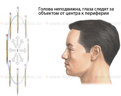 Nystagmus and similar-appearing disorders, nystagmus, types of nystagmus, congenital nystagmus, labyrinth-vestibular nystagmus, periodic alternating nystagmus, dissociated vertical nystagmus, disease that resemble nystagmus , diagnosis and treatment in Moscow, symptoms