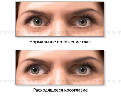 Eye movement disorders, eye movement, oculomotor, trochlear and abducens nerve, oculomotor nerve (III cranial nerve), trochlear nerve (IV cranial nerve), abducens nerve (VI cranial nerve), saccadic (rapid) eye movements, focused eye movements, convergent eye movement, retention of eye in a specific position, eye movements in acceleration and gravity changing, extraocular muscles and gaze palsy, paralysis of individual eye muscles, friendly gaze paralysis, mixed gaze and individual eyeball muscles palsy, diagnosis and treatment in Moscow, symptoms