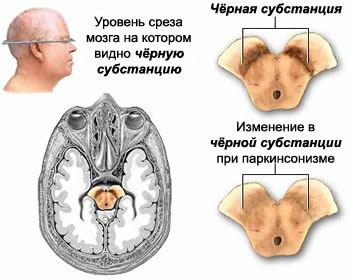 Normal zone of substantia nigra in the brainstem and in Parkinson's disease and parkinsonism.