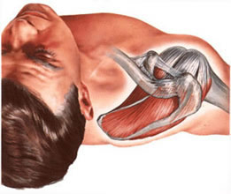 In the area of the shoulder joint, bursitis most often develops in the subacromial and subdeltoid synovial bursa.