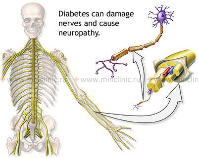 diabetic foot neuropathy treatment