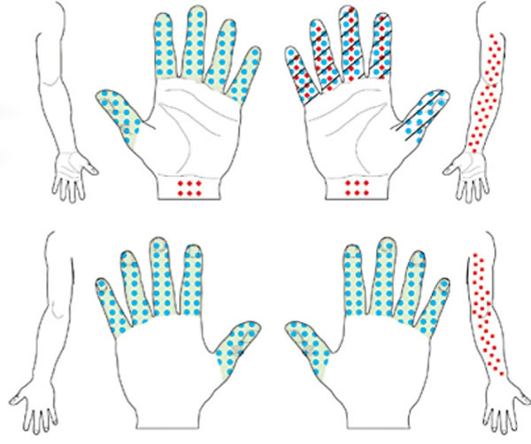 Min Carpal Tunnel Syndrome Diagnosis Of Carpal Tunnel Syndrome