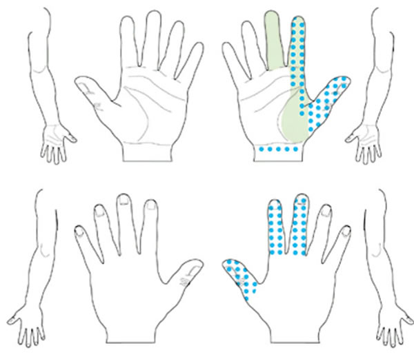 Carpal tunnel syndrome probable patterns of numbness, pain, tingling and decreased sensation. Same symptom pattern as classic, except palmar symptoms are allowed unless confined solely to the ulnar aspect. In the possible pattern, not shown, symptoms involve only one of digits 1, 2, or 3.