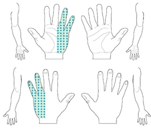 Carpal tunnel syndrome unlikely patterns of numbness, pain, tingling and decreased sensation. No symptoms are present in digits 1, 2, or 3.