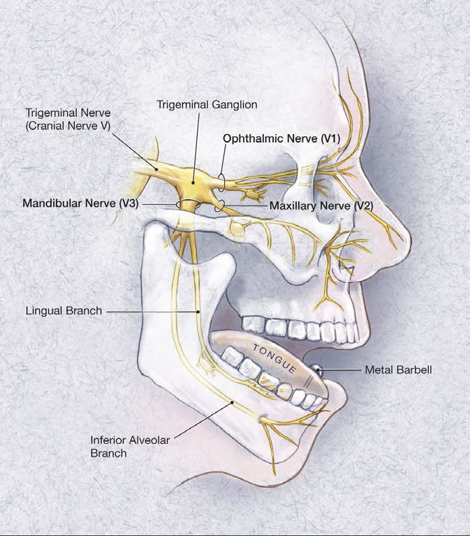 Trigeminal nerve branches.