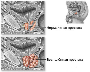 The prostate in normal state and with inflammation.