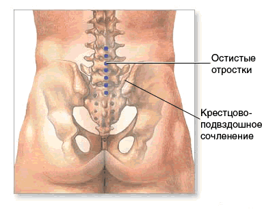 Inflammation of the sacroiliac joint (sacroiliitis) in the acute stage causes pain in the sacrum (sacrodynia).