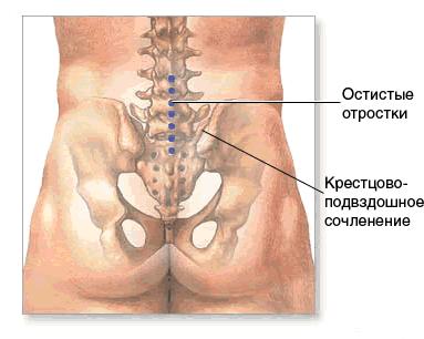 Артроз крестцово-подвздошного сустава (сочленения), диагностика артроза крестцово-подвздошного сустава (сочленения), лечение артроза крестцово-подвздошного сустава (сочленения), лечить артроз крестцово-подвздошного сустава (сочленения) в Москве, как лечат, как лечить, где лечат, где лечить.