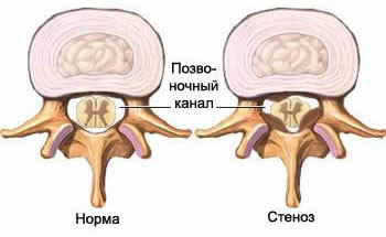 Spinal stenosis, diagnosis of spinal canal stenosis, treatment of spinal canal stenosis, treatment of hypertrophy of the posterior longitudinal and yellow ligaments in Moscow