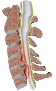 Spinal stenosis with spondylosis and compression of the spinal cord at the cervical spine level with hypertrophy of the posterior longitudinal and yellow ligaments.