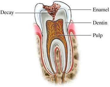 Dental caries (tooth decay), diagnosis and treatment of dental caries (tooth decay), diagnose and treat tooth decay, deep caries, causes of dental caries, the classification of dental caries, tooth decay stage, the treatment of caries tooth cavity preparation stages of the tooth, the tooth fillings, dressings and temporary fillings tooth Insulating strip tooth treatment strip tooth, price and value in Moscow, a symptom of disease, a symptom of the disease, symptoms of inflammation, symptoms, symptoms of disease, symptoms, syndrome, disease, symptoms of disease