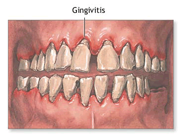 Ulcerative gingivitis, diagnosis and treatment of ulcerative gingivitis, diagnose and treat ulcerative gingivitis, price and cost of treatment of ulcerative gingivitis in Moscow, where and how to treat ulcerative gingivitis, causes and symptoms of ulcerative gingivitis, a symptom of disease, a symptom of the disease, symptoms of inflammation, symptoms, symptom disease, symptoms, syndrome disease syndrome disease