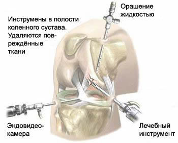Endoscopic (arthroscopic) surgery on the knee joint.