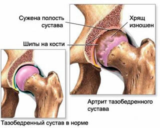 Hip joint osteoarthrosis (coxarthrosis) affects the articular cartilage and bone articular surface.