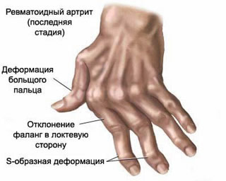 A typical deformation of the phalanges of fingers in a patient with rheumatoid arthritis.