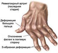 Артрит и артроз (заболевания суставов) - имптомы и лечение. Журнал Медикал