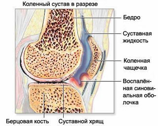 Osteoarthrosis (gonarthrosis) of the knee joint (ligaments, meniscus, articular cartilage).