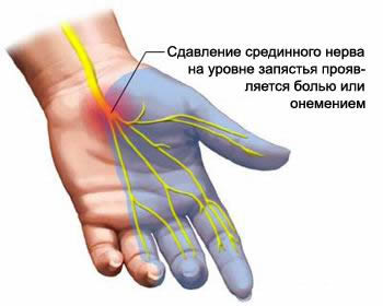 Place of the median nerve compression in carpal tunnel cause a tunnel syndrome.
