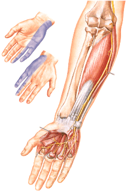 Areas of impaired sensitivity in ulnar neuropathy.