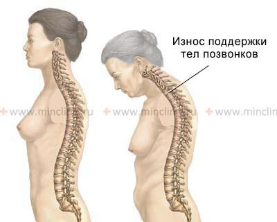 Что если болит спина низ при 14 недели беременности