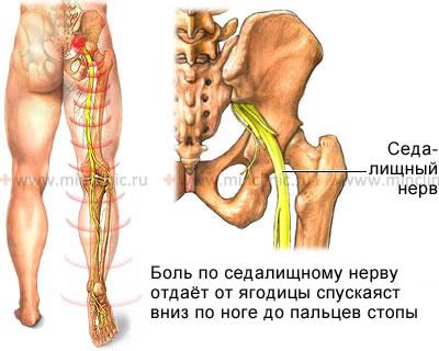 Чем лечить онемение руки при остеохондрозе