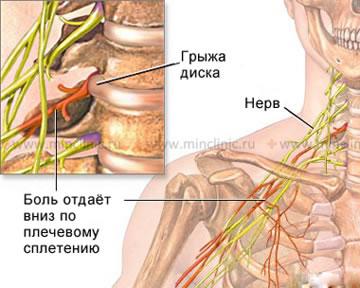 Лечебная гимнастика для позвоночник грудного отдела