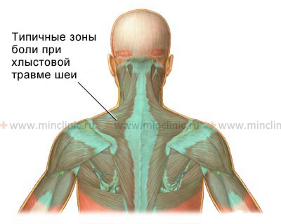 Pain localization in cervicocranial syndrome and whiplash neck injury, radiating from the neck to the area between the shoulder blades or below, in the shoulders.