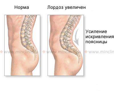 Болят мышцы шею сзади что делать
