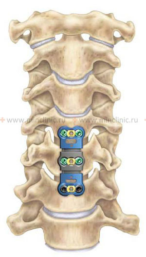Vertebral subluxation and dislocation, diagnostic of vertebral subluxation and dislocation, reposition of vertebral subluxation and dislocation, treatment in Moscow